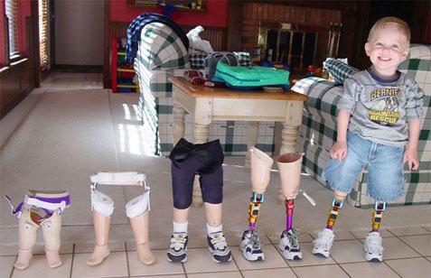 benenverzameling.jpg